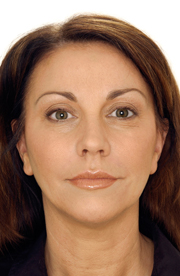 face-dermal-fillers