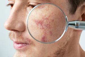Best Rosacea Treatment Lasers Norwich Norfolk Uk