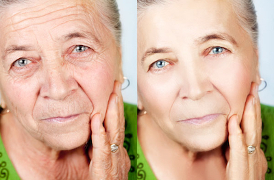 reduce-facial-ageing