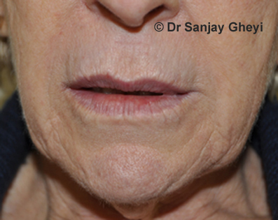 Lip enhancement, Lip injections, augmentation and