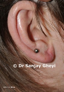 etorn earlobe repair